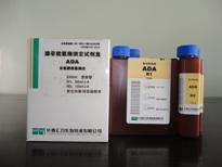 腺苷脱氨酶(ADA)测...